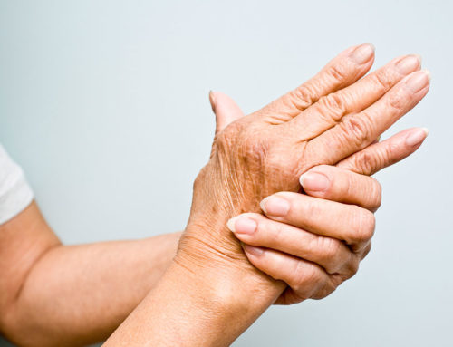 How to Treat Arthritis Symptoms with Chiropractic Massage Therapy
